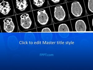Plantilla PowerPoint de Tomografía Computarizada Gratuita